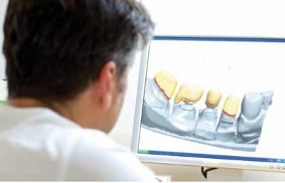 奥塔哥大学牙科技术本科毕业生可注册成为牙科技术师