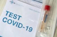 为控制疫情-瑞士政府掏腰包做病毒检测